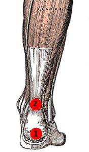Common Locations of Achilles Tendonitis: 1) Insertional Achilles Tendonitis. 2) Non-insertional Achilles Tendonitis