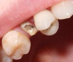 A dental crown is a cap-like restoration used to cover a damaged tooth