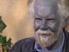 "Paul Karason Dies; Medical Mystery Known as ""Blue Man"" or ""Papa Smurf"" Was 62"