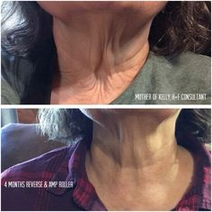 Kelly's mom used to only wash her face with soap. She tried R+F to support her daughter's business, but she got way more than she expected! She could not believe her incredible results after 4 months of using the Reverse regimen and the AMP MD Roller. This folks, is life changing skincare! Message me to get started on your amazing results! #RFGKO #GKOEMPIRE ginaowenby.myrandf.com