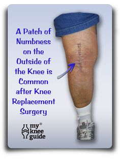 After knee replacement surgery, it is common to have a patch of numbness on the outside portion of the knee.