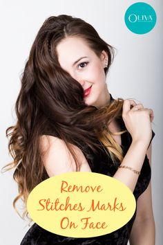 Stitch marks on face is common but fortunately you have several solutions like laser, peel, mnrf and surgical removal. Know the treatment options, cost and success rate. Hair Clinic, Scar Treatment, Acne Scar Removal, Free Makeup, Acne Scars, Natural Treatments, Natural Healing, Clear Skin, Restore