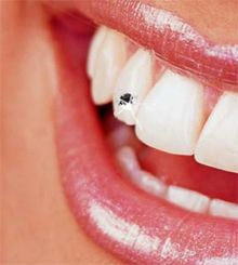 Teeth Jewelry - Diamond Teeth- Dental Research Diamond Grillz, Diamond Teeth, Jewelry Tags, Gems Jewelry, Tooth Jewelry, Braces Off, Tooth Gem, Brace Face, Gold Teeth