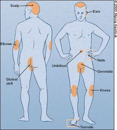psoriasis images - Google Search