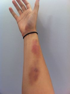 Day old bruising on flat of arm.