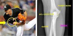 Baseball Injuries, Jose Fernandez, Miami Marlins, Ml B, Sport Casual, Surgery