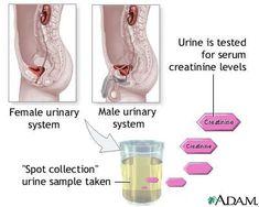 sample urine color chart Routine Urinalysis Normal Laboratory Study Values - Nursing Crib Liver Diet, Healthy Liver, Fatty Liver, Serum Creatinine, Creatinine Levels, Chronic Kidney Disease, Liver Disease, Acid Base Balance