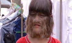 O cabelo da menina cresce de maneira estranha. 10 anos depois, os médicos nunca viram um caso como o dela