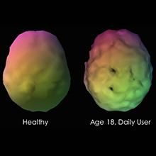 New Study by Dr. Daniel G. Amen shows Marijuana Users have Low Blood Flow to the Brain