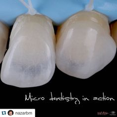 #Repost @nazarbm with @repostapp.  Only for dentists! Ультра тонкі вініри для корекції форми та кольору. #MicroVisionGroup #dsd #smile #veneers #dentistry #dentist by tokaranatoliy Our General Dentistry Page: http://www.myimagedental.com/services/general-dentistry/ Google My Business: https://plus.google.com/ImageDentalStockton/about Our Yelp Page: bit.ly/1KZUPer Our Facebook Page: https://www.facebook.com/MyImageDental Image Dental 3453 Brookside Road Suite A Stockton CA 95219 (209)…