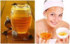 3 Tuyệt chiêu trị tàn nhang bằng mật ong hiệu quả nhanh - Phụ Nữ Yêu Kiều, Phụ nữ Việt Nam, Báo online today