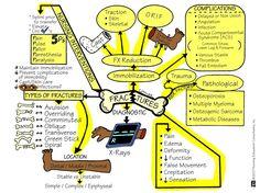 nursing school tips and tricks Nursing Cheat Sheet, Nursing Tips, Nursing Career, Med Surg Nursing, Rn School, School Ideas, Nursing School Notes, Nursing Schools, Nursing Mnemonics