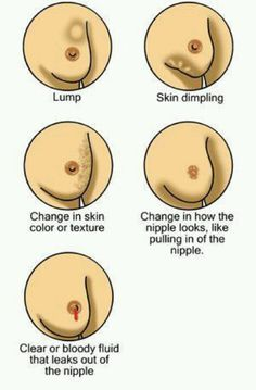 Breast cancer signs to look for