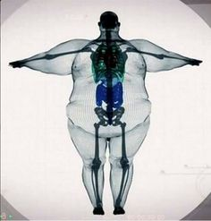 Esqueleto de un obeso.