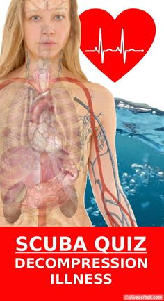 One of the risks involved with diving under pressure is decompression illness. There are two diseases related to decompression illness: Decompression sickness and arterial gas embolism. Can you separate the two in this quiz? Diving Pool, Deep Diving, Best Scuba Diving, Decompression Sickness, Scuba Bcd, Scuba Watch, Breathing Underwater, Scuba Diving Equipment, Diving Course