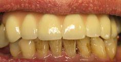 Vaše tvář je první věc, která zaujme druhou osobu při prvním setkání. Zářivý úsměv, jak víme, může být klíčem k dosažení mnoha cílů. Symbolizuje nejen optimismus a dobrou náladu, ale napoví něco i o zdraví a návycích člověka. Klíčovou roli sehrává stav vašeho chrupu. Zuby mohou ztmavnout a poka