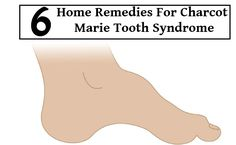 6 Home Remedies For Charcot Marie Tooth Syndrome