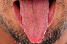 How to Heal Tongue Sores