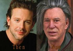 Mickey Rourke Bad Plastic Surgery. #mickeyrourke #cosmeticsurgery #plasticsurgery #celebritysurgery #botox #facelift