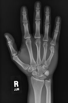 pictures of x-rays | Normal Hand X-ray