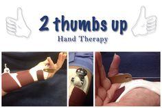 2 Thumbs Up Hand Therapy Custom Dynamic MCP flexion splint