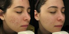 Acne Scars Treatment Before and After Photos.  Please see www.acnescartreatment.co.uk for acne scar treatment methods.