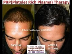 PRP (Platelet Rich Plasma) therapy is a novel treatment to treat hair fall, hair thinning and ageing skin and DERMACLINIX is amongst the pioneers of this treatment in Delhi.