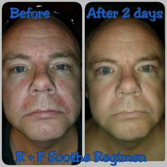 After Michael had an sensitive skin flare up and listening to his consultant wife go on and on about SOOTHE, he finally broke down and started using   This is just after 4 applications!