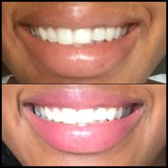 Lightens teeth without peroxide while helping to prevent cavities. Anti Itch Cream, Home Spa Treatments, Clear Pores, At Home Face Mask, New Skin, Teeth Whitening, Natural Skin Care, Healthy Skin, Sensitive Skin