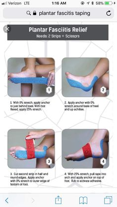 KT taping for plantar fasciitis – Typical Miracle Facitis Plantar, Plantar Fasciitis Exercises, Plantar Fasciitis Treatment, Taping For Plantar Fasciitis, Health Diet, Health And Nutrition, Health And Wellness, Health Fitness, Foot Pain Relief