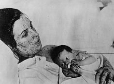 Woman with smallpox with vaccinated infant. This woman was 'lucky'.  If she had had Hemmorhagic Smallpox while pregnant she would have faced 100%  chance of death!