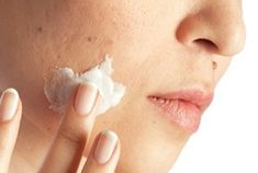 Mild acne can often be treated with topical OTC treatments. Find out when they're effective, side effects, and the best products to try to for acne treatment. Molluscum Pendulum, Skin Tags On Face, Face Skin, Different Types Of Acne, Remover Manchas, Best Acne Products, Beauty Products, Acne Causes, Skin Tag Removal