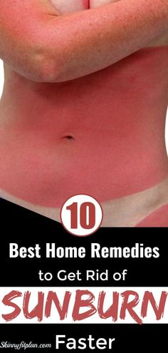 Do you want to heal sunburn fast? Luckily for you,I get the best home remedies to get rid of sunburn faster for you. Find out here, what is good for sunburn Heal Sunburn Fast, Best Remedy For Sunburn, How To Help Sunburn, Get Rid Of Sunburn, Sunburn Skin, Natural Remedies For Sunburn, Natural Health Remedies, Sunburn Home Remedies, Herbal Remedies