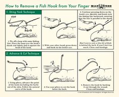 How to Remove a Fish Hook | The Art of Manliness