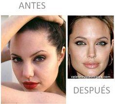 Celebridades operadas (antes y después) | Cuidar de tu belleza es facilisimo.com