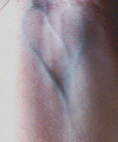heart shape blood vein