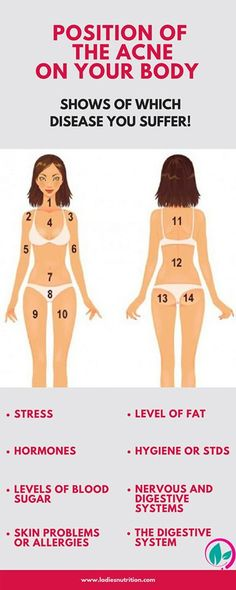 The location of acne on the body or the face says a lot about our health. To read the signs is very simple. Different location areas of them correspond to different disease and problems.