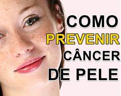 Uma dica simples e infalível para diminuir o risco do câncer de pele