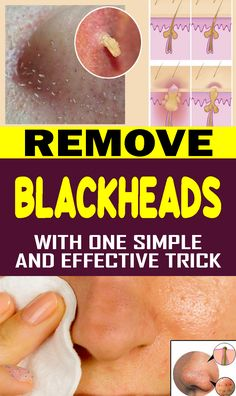Zits resemble minor parasites that quite often mess up with your desire of having a reasonable skin. So what are clogged pores and how might you dispose of them successfully and normally? These are modest pimples Herbal Remedies, Health Remedies, Natural Remedies, Acne Remedies, Bronchitis Remedies, Insomnia Remedies, Psoriasis Remedies, Cellulite Remedies, Arthritis Remedies