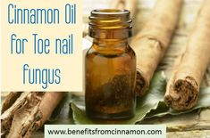 Research studies have proved that cinnamon can prove to be beneficial for the treatment of toe nail fungus.