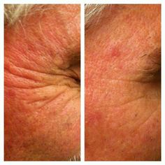 More Real Results With #NeriumAD!