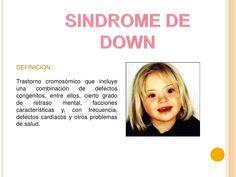 SINDROME DE DOWN<br />DEFINICION: <br />Trastorno cromosómico que incluye una combinación de defectos congénitos, entre el...