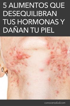 5 Alimentos que desequilibran tus hormonas y dañan tu piel - Conocer Salud