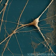 Spinal ganglion nerve cells, coloured scanning electron micrograph (SEM).