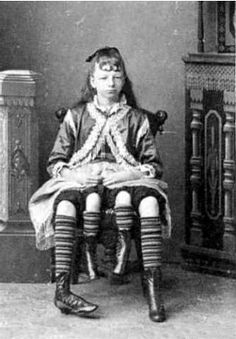 Josephene Myrtle Corbin, the Four-Legged Woman, was born in Lincoln County, Tennessee in 1868. Rather than having a parasitic twin, Myrtle's extra legs resulted from an even rarer form of conjoined twinning known as dipygus, which gave her two complete bodies from the waist down. She had two small pelves side-by-side, and each of her smaller inner legs was paired with one of her outer legs. She could move the smaller legs but was unable to use them for walking.