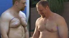 Man boob Biggest