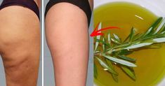 : Ulteriori informazioni Non Cellulite Scrub, Anti Cellulite, Natural Treatments, Natural Remedies, Celulite Remedies, Beauty Care, Beauty Hacks, Sugaring Hair Removal, Infused Water Recipes