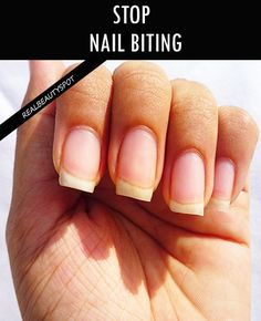 QUIT NAIL BITING – BASED ON PERSONAL EXPERIENCE