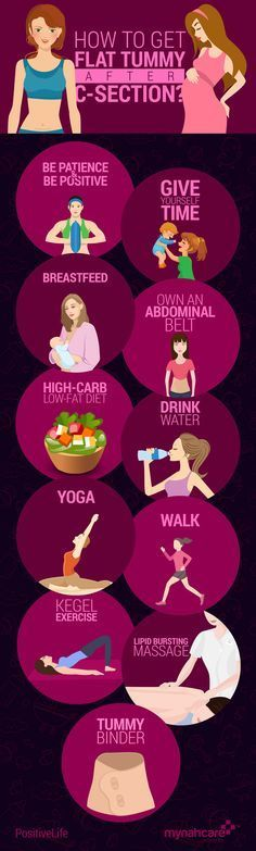 SIMPLE TIPS TO GET FLAT TUMMY AFTER C-SECTION. #Pregnancy #CSection #LoseWeight #Mynahcare.