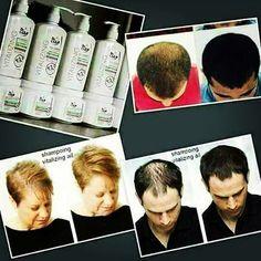 ��Farmasi Sarımsaklı Şampuan içindeki vitaminler, minareller, eser elementler sayesinde saçın ve saç derisinin güçlenmesine ve saçların uzamasına  saçların dolgunluk kazanmasını ve en büyük özelliği saç dökülmesini önleyici etkisi  vardır. ��Farmasi sarımsak özlü şampuan antibiyotik özelliği taşır. Sarımsak ekstraktı sahip olduğu antioksidan özellikleri ile saç ve saç derisi tedavilerinde kullanılır. Saç derisindeki dolaşımı dengeler zararlı toksinleri ciltten uzaklaştırarak saç uzamasına ve…